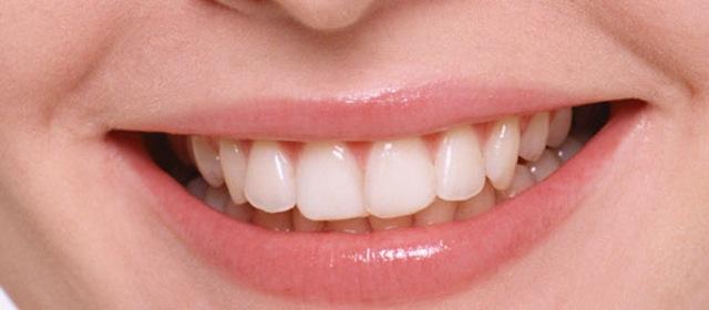歯を白くピカピカに!歯の黄ばみ・くすみの原因と落とし方
