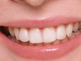 Thumb oral20120225 2 m