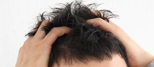 頭皮の硬さが「薄毛」のサイン!?今からでも遅くない薄毛対策