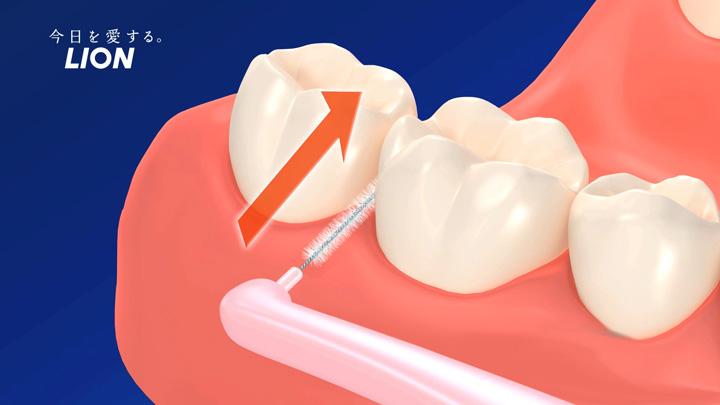 歯間ブラシの先端を斜め上(下顎の場合)に向けて挿入