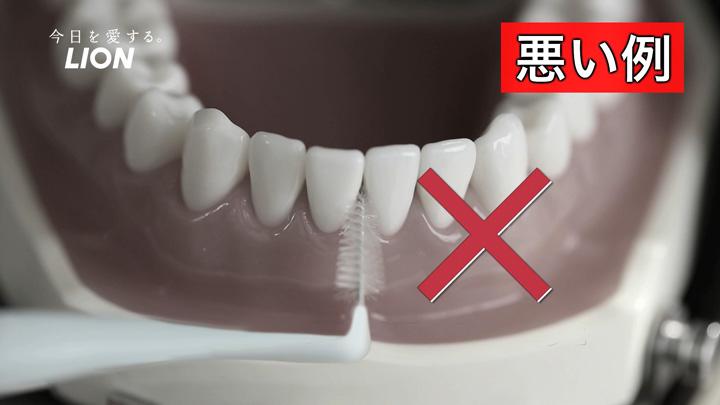 狭い隙間に大きすぎる歯間ブラシを使うと、歯肉退縮の原因に