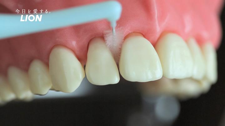 歯間に無理なく挿入でき、きつく感じない程度を選ぶ