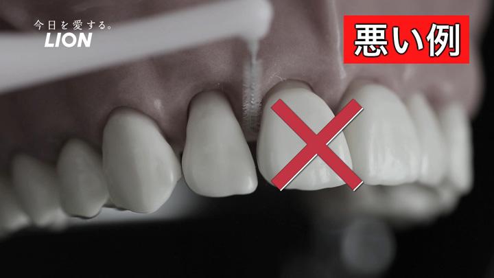 広い隙間に小さすぎる歯間ブラシを使うと、歯垢を十分に落とせない
