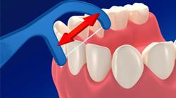 歯と歯の間に入れる
