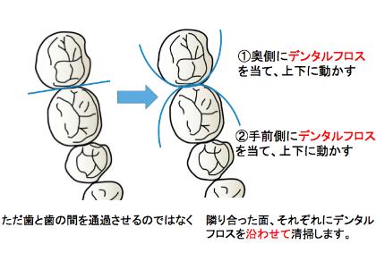 デンタルフロスを歯に巻きつけるように歯に沿わせて使用すると、より効果的に歯垢を除去することができます。