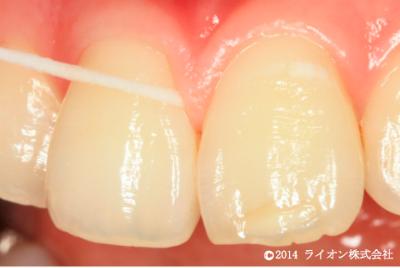 歯と歯茎の境目の溝の中にも歯垢が入りこんでいます。力を入れすぎずにデンタルフロスがスッと入る所まで、注意しながら清掃しましょう。