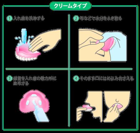 クリームタイプの義歯安定剤の使い方