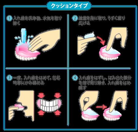 クッションタイプの義歯安定剤の使い方