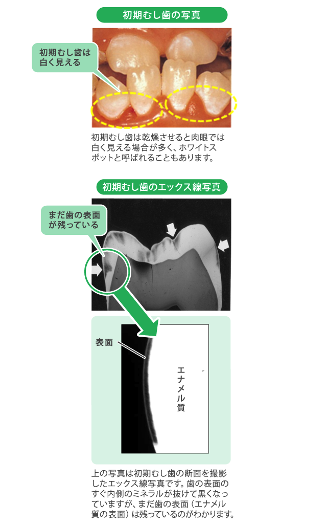 初期虫歯の特徴