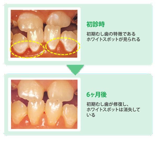 初期むし歯と診断されてから適切なケアを行った6ヶ月後の歯の状態