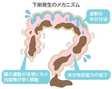 「下痢」が発生するメカニズム