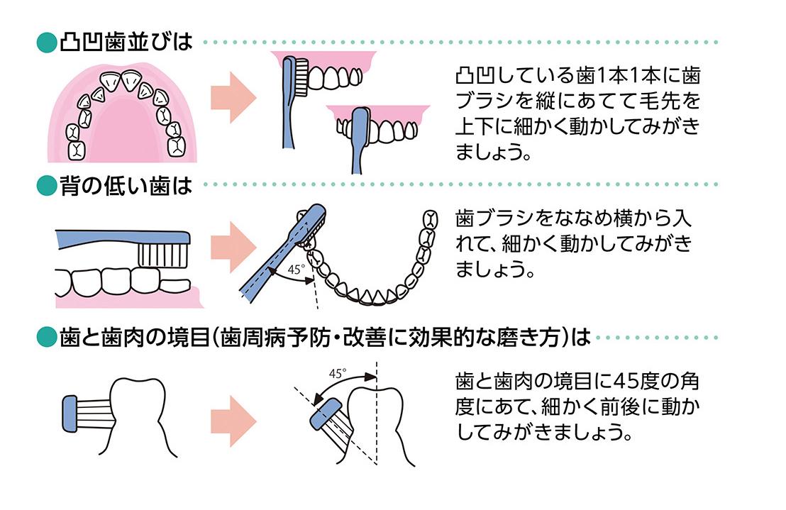 「歯ブラシがあたりにくいところ」の磨き方