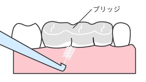 「歯間ブラシ」でいつもキレイに