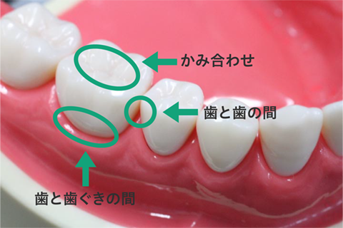 歯と歯の間・歯と歯ぐきの境目・かみ合わせ