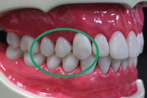 利き腕側のみがき残しの多い場所(犬歯から小臼歯のあたり)