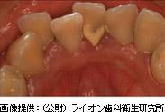 歯石による様々な「リスク」