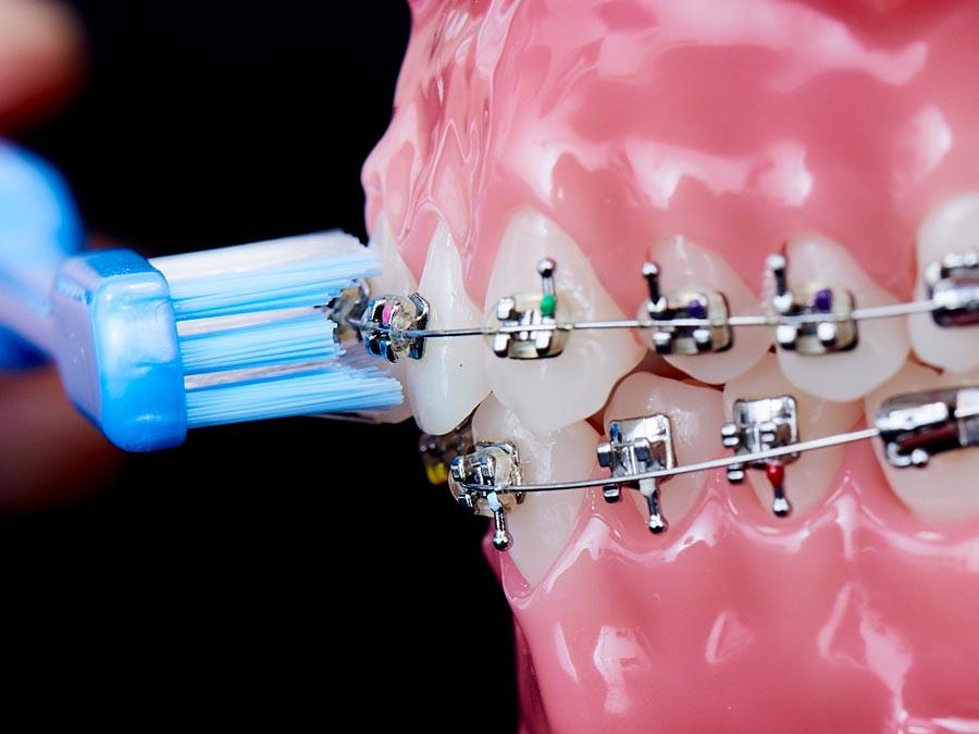 歯面をみがく例