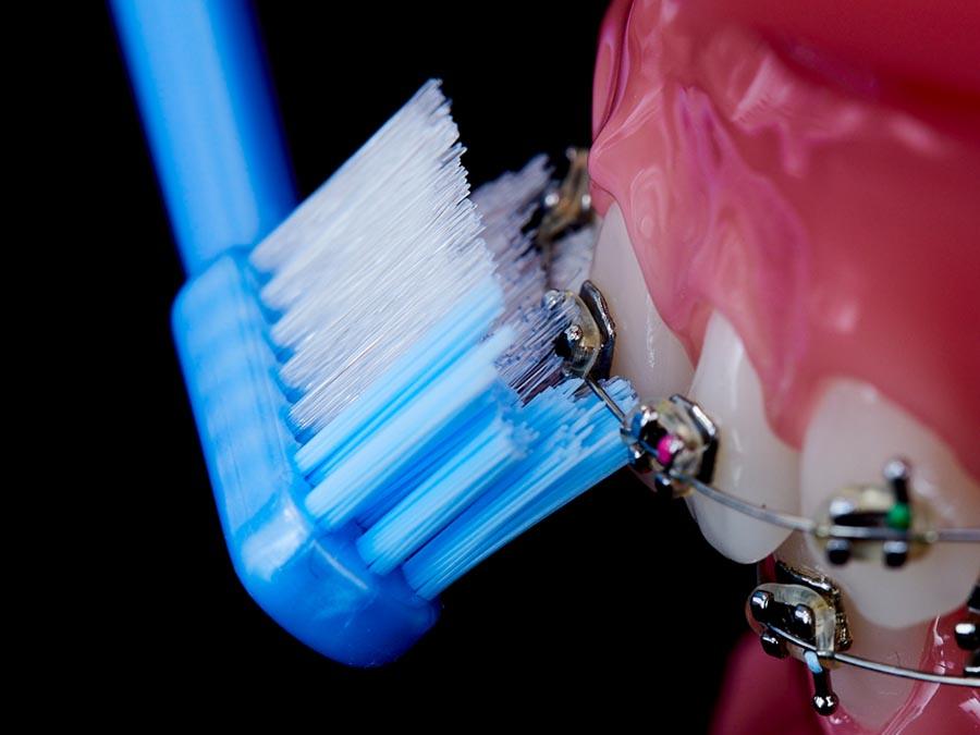 傾けてブラケットまわり、ワイヤー下の歯面をみがく例