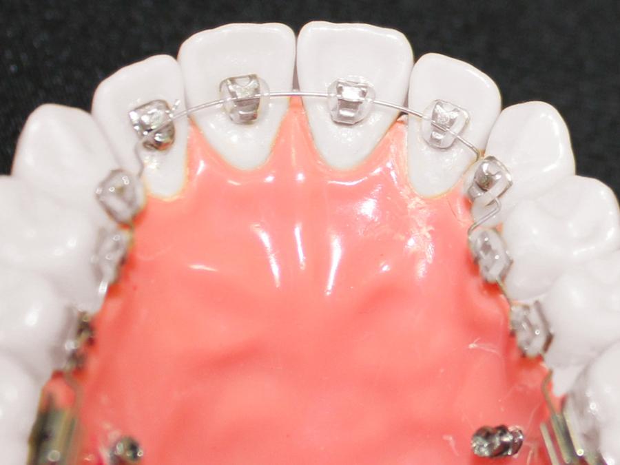 歯の裏側につける矯正装置